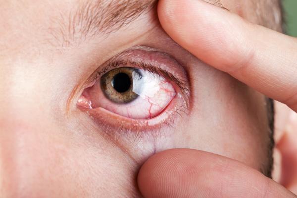 Cuáles son las mejores lentillas para ojos secos - El síndrome de los ojos secos