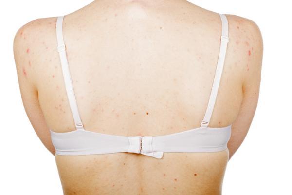 Cómo quitar manchas de acné en la espalda - Tratamientos para quitar manchas de acné en la espalda
