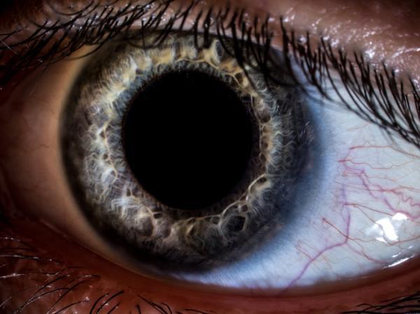 Por qué me escuecen los ojos al llorar - Irritación ocular y cuerpos extraños