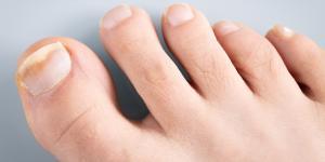 Cómo curar las uñas huecas de los pies