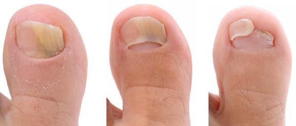 Manchas oscuras en las uñas: causas - Uñas marrones o amarillas por hongos