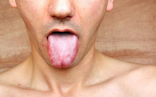 Cómo cicatrizar un corte en la lengua
