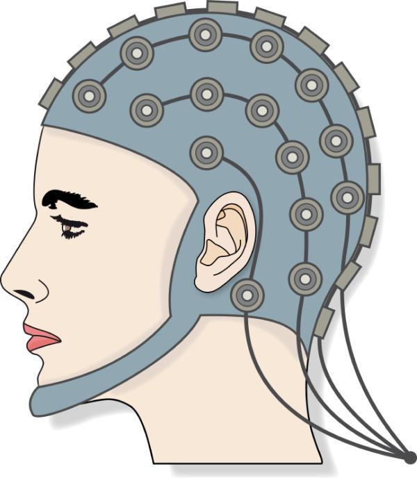 Electroencefalograma: qué es y para qué sirve