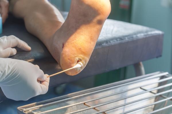 Cómo curar una úlcera en el pie