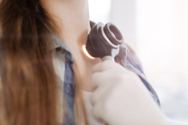 Verrugas en cuello causas