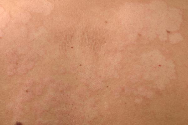 Cómo curar manchas blancas en la piel por hongos