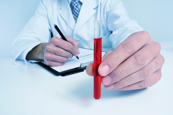 Hemoglobina glicosilada alta: causas, consecuencias y cómo bajarla