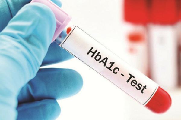 Hemoglobina glicosilada alta: causas, consecuencias y cómo bajarla - Hemoglobina glicosilada: valores normales