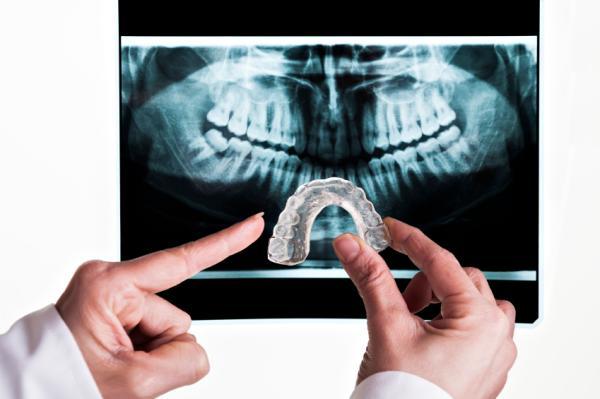 Cómo evitar el bruxismo nocturno - Bruxismo: tratamiento farmacológico y odontológico