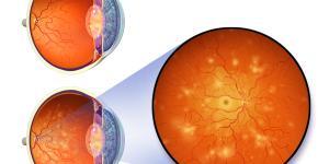 Retinopatía diabética: síntomas, clasificación, causas y tratamiento