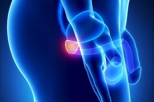 Cuidados después de una biopsia de próstata - Cómo se hace una biopsia de próstata