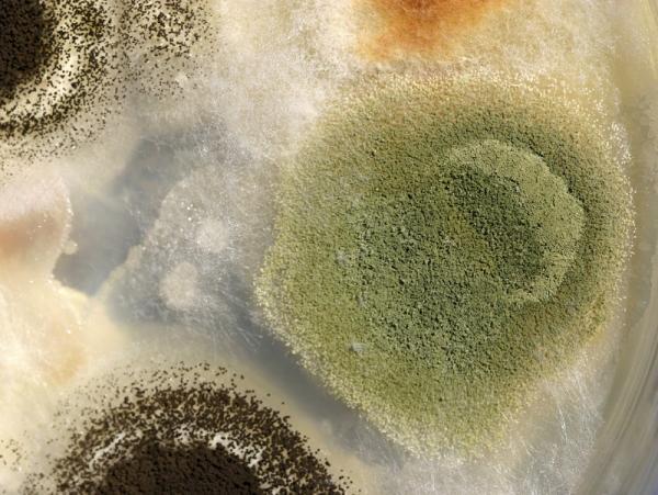 Por qué tengo el glande blanco - Hongos en el glande: puntos blancos y sequedad