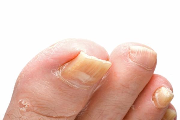 Uñas gruesas en los pies: tratamiento y remedios
