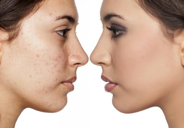 ¿Es normal que después de una limpieza facial salgan granos?