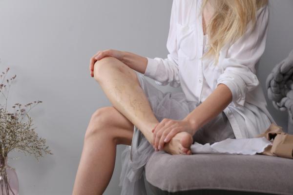 ¿Es normal que se vean las venas en las piernas?