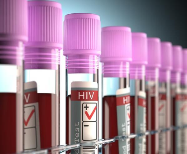 ¿Se puede transmitir el VIH por la saliva? - ¿Qué es el VIH?