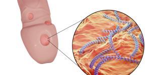 Úlceras en el pene: causas, síntomas y tratamiento