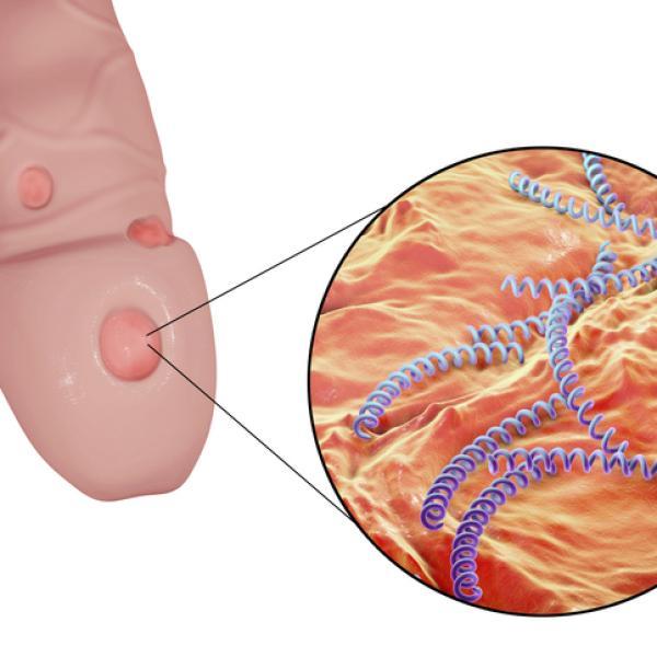 úlceras En El Pene Causas Síntomas Y Tratamiento