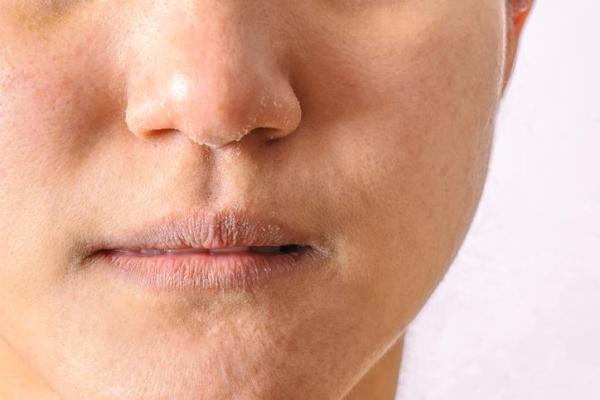 Pele do rosto ressecada: causas, tratamento e remédios caseiros - Pele do rosto ressecada (xerose)