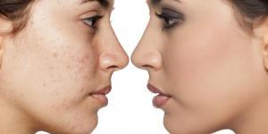 É normal dar espinha após limpeza de pele?