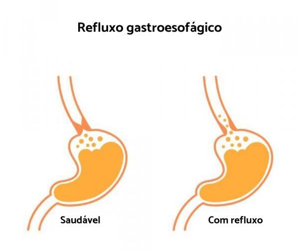 Acidez na garganta: causas, tratamento e remédios caseiros - Acidez na garganta: o que pode ser