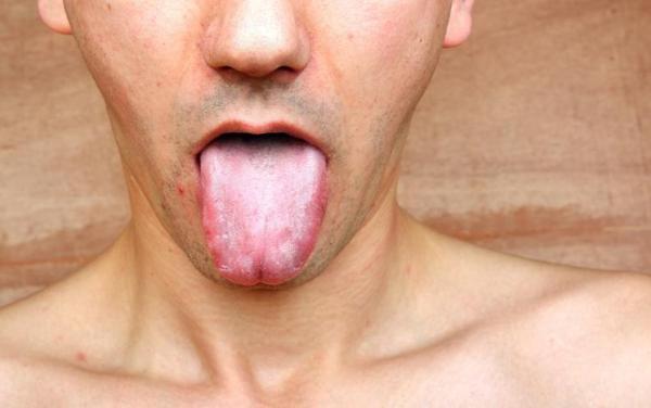 Por que tenho a saliva branca e espumante?