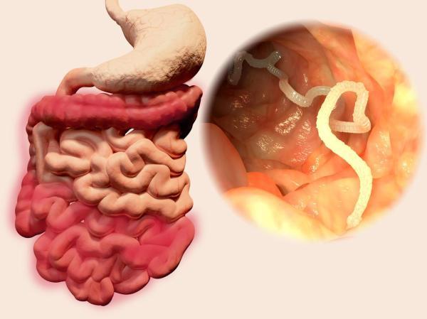 Dores ao defecar com sensação de rasgadura e ardência - Ardência ao evacuar: parasitas