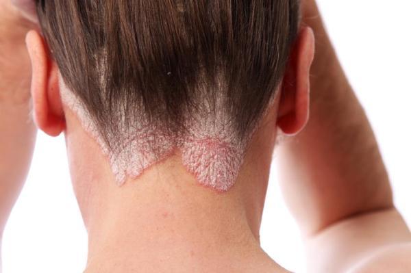 Manchas vermelhas no pescoço: o que podem ser - Sintomas de manchas vermelhas no pescoço