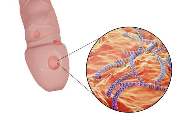 Úlceras no pênis: causas, sintomas e tratamento