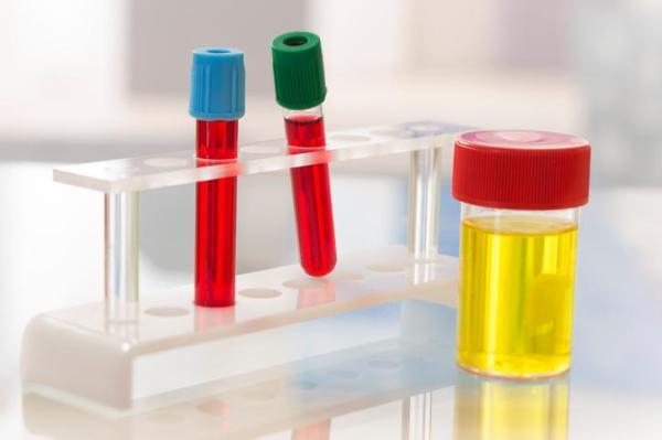 Presença de muco na urina: o que significa?