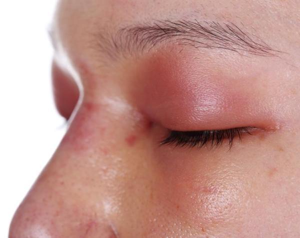 Como tirar inchaço dos olhos