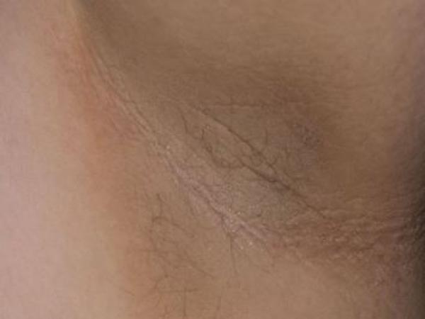 Manchas escuras no pescoço: o que pode ser e como tirar - Manchas escuras no pescoço: o que pode ser
