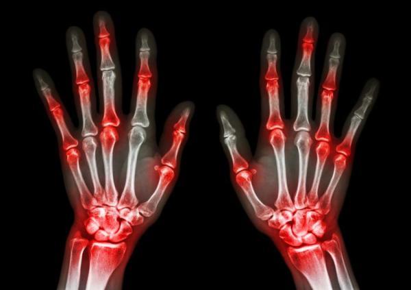 Cãibra na mão: causas e soluções - Artrite nas mãos