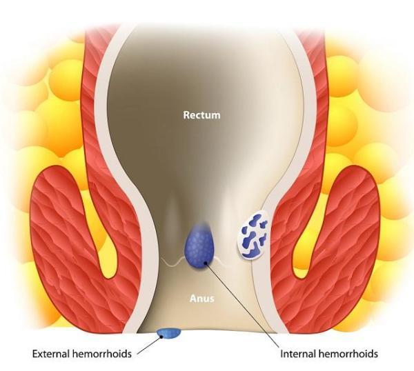 Hemorroidas: tipos, sintomas e tratamentos - Tipos de hemorroidas