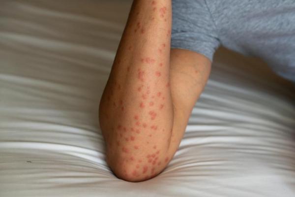 Bolinhas vermelhas nos braços: causas e tratamento