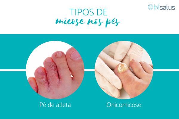 Tipos de micose nos pés - com fotos