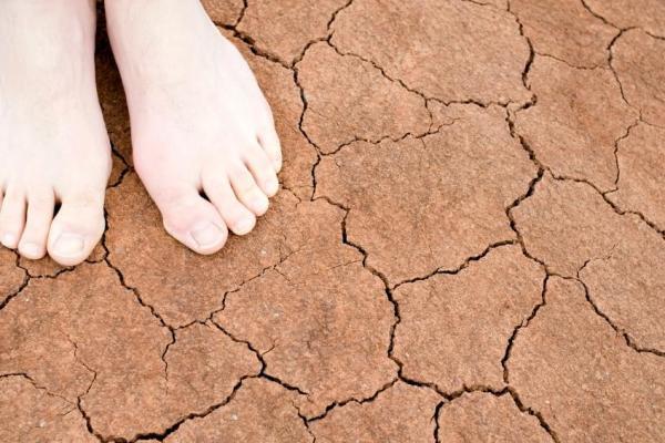 Coceira nos pés antes de dormir: causas - Coceira nos pés antes de dormir: eczema disidrótico