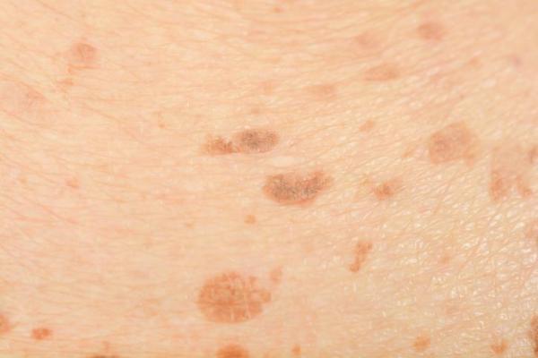 Manchas escuras na perna: causas e tratamento - Manchas senis