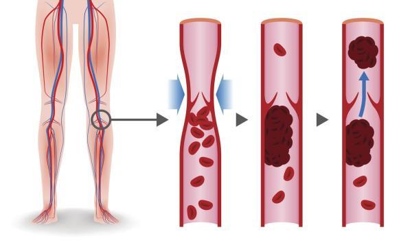 Qual o tempo de recuperção da trombose na perna?