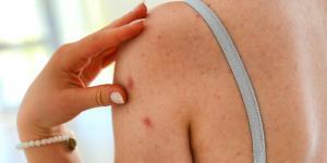 Espinhas nos braços: causas e como eliminá-las