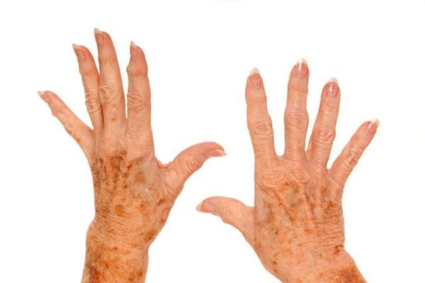 Dor no dedo polegar: causas e como aliviá-la - Dor no dedo polegar: o que pode ser
