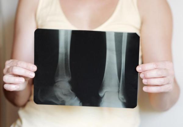 Osteoporose: tratamento, prevenção e sintomas - Osteoporose: causas