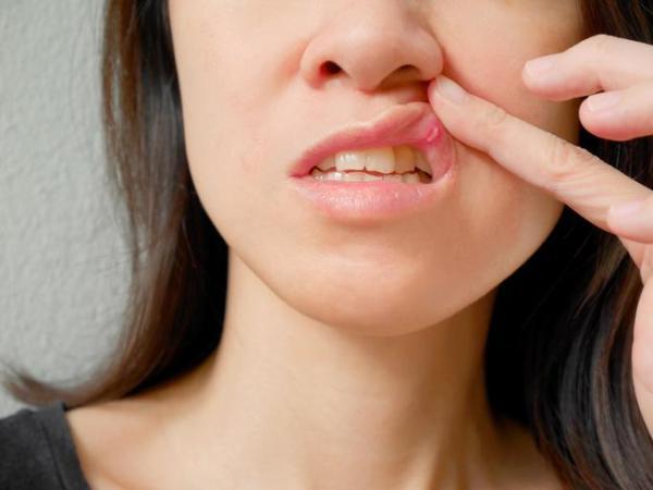 Remédios caseiros para afta na boca