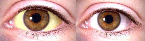 Bilirrubina alta: sintomas, causas e tratamento - Bilirrubina alta: sintomas