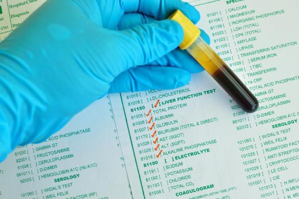 Bilirrubina alta: sintomas, causas e tratamento