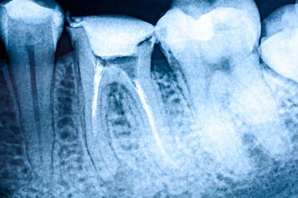 Dente do siso inflamado depois da extração: quantos dias dura - Sobre os dentes do siso
