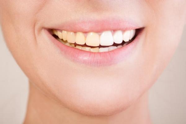 Alimentos que clareiam os dentes - Porque os dentes amarelam?