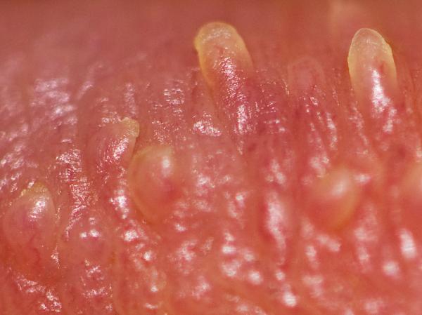 Glande branca: causas - Pontinhos na glande: pápulas peroladas ou manchas de Fordyce