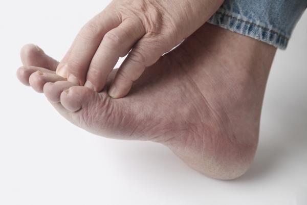 Dor no joelho em repouso: causas e tratamento - Dor no joelho em repouso por gota