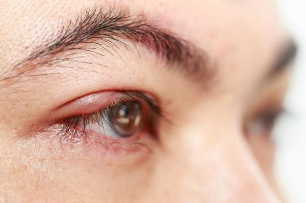 Sensação de areia nos olhos: causas - Sensação de areia no olho devido a um terçol